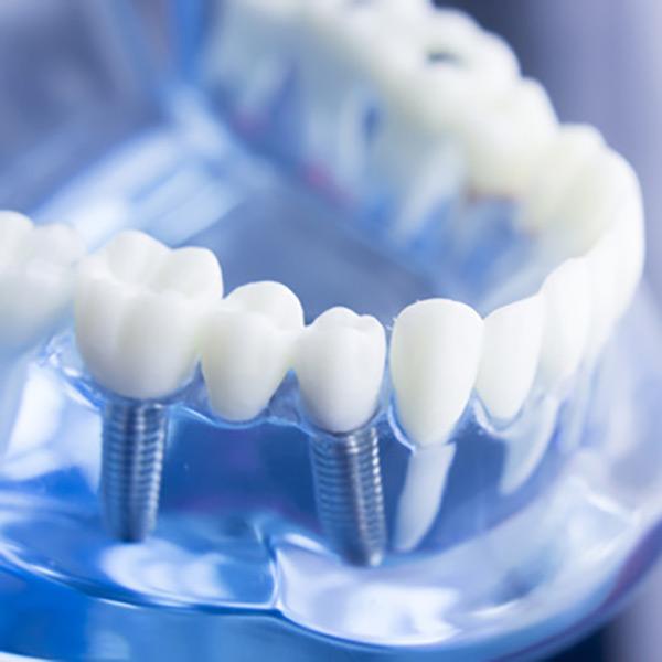 Sonstiges | Zahnarzt Dr. Lempa Wolfenbüttel