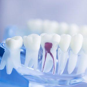 Endodontie (Wurzelbehandlung) | Zahnarzt Dr. Lempa Wolfenbüttel
