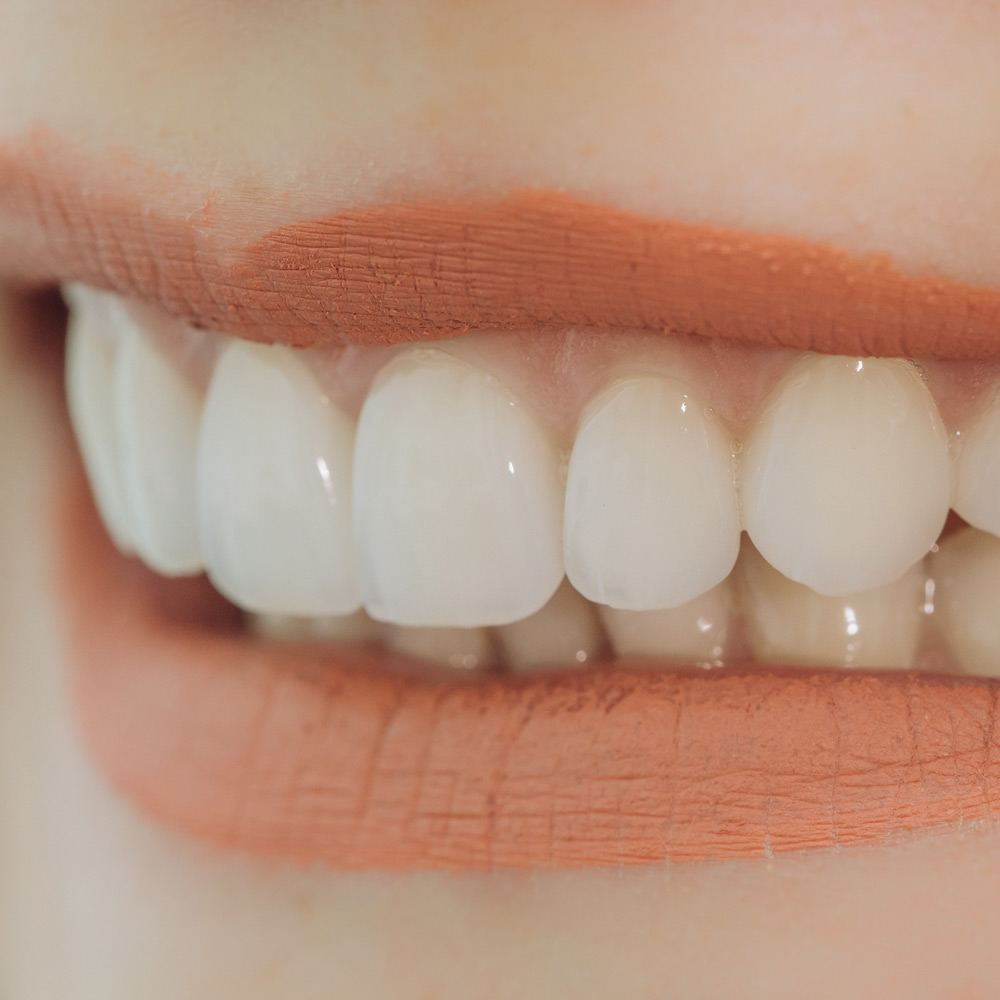 Veneers verbessern hauchdünn und teils ohne Beschleifen der Zähne Zahnstellung, Verfärbungen oder Defekte im Frontzahnbereich.